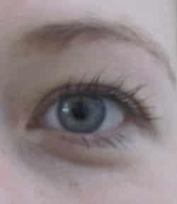 Eine Augenkorrektur per Laseroperation soll dafür sorgen, dass der Patient keine Sehhilfen mehr benötigt.